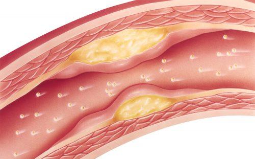 vitamin D and cardiovascular disease