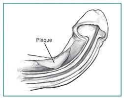 casue of Peyronie's Disease