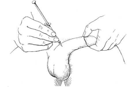 penis injection